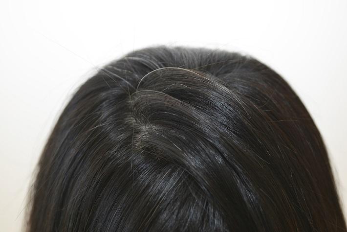 白髪を抜くのはやっぱりダメ!?白髪がある時はどうしたらいいの?のサムネイル画像